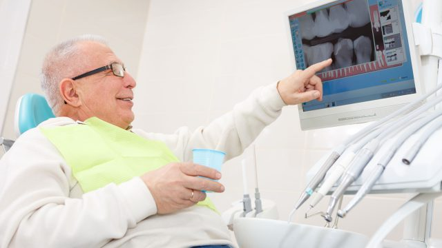5 myths about dental implants that are not true